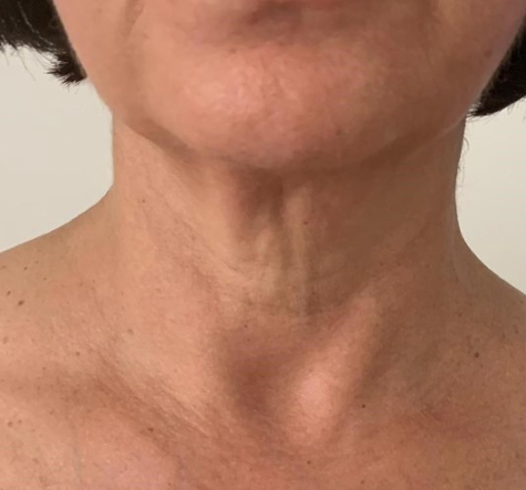 Hals nach 5 Behandlungen