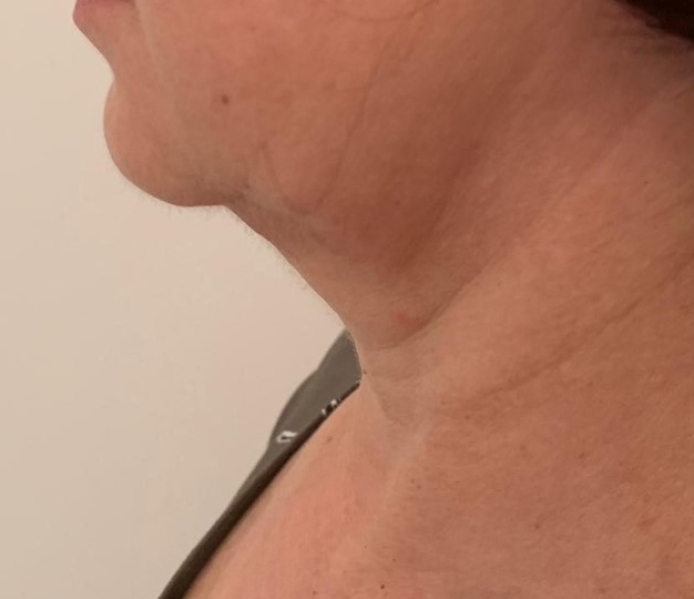 Hals vor der Behandlung